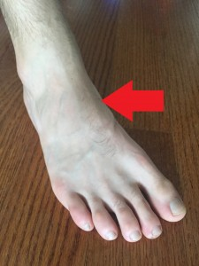 The red arrow points to the location of the navicular bone.